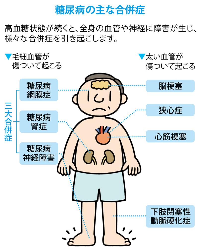疾患 虚 血性 心
